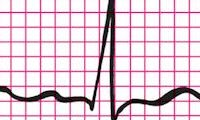 Binnenkort hartslagmeter op iPhone?