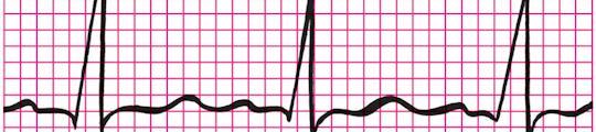 Hartslag op iPhone met Heart Monitor