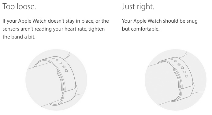 apple watch irritatie
