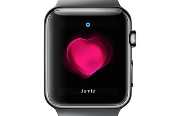 Apple Watch hartritmestoornissen