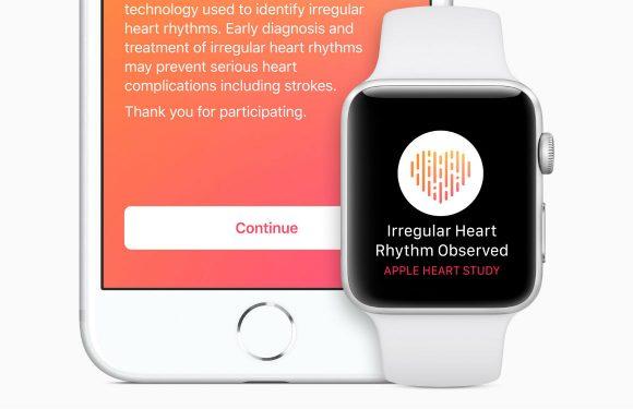 Apple start onderzoek naar hartritmestoornissen via Apple Watch-app