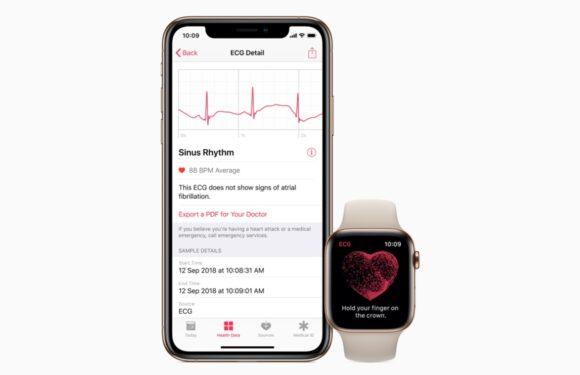 watchOS 5.2 nu beschikbaar: introduceert hartfilmfunctie in Europa