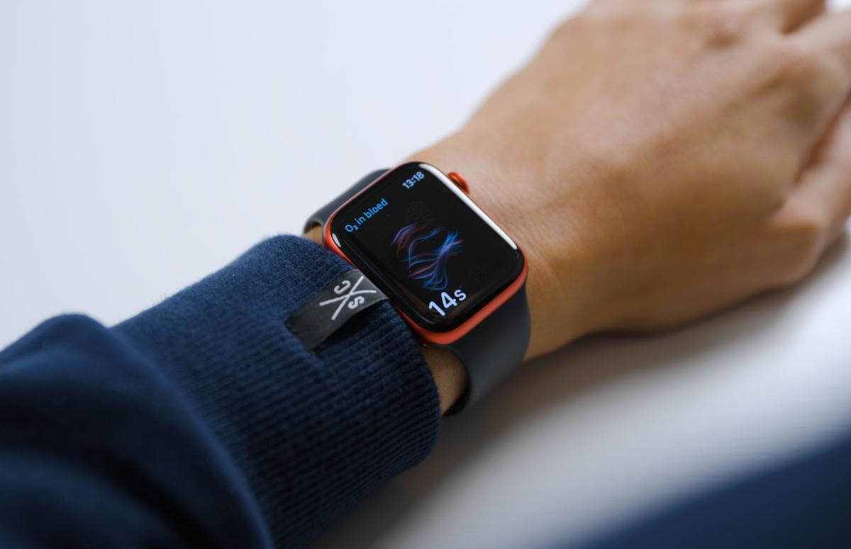 'Apple Watch Series 7 meet bloedsuikergehalte met optische sensor'